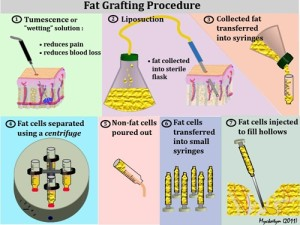 FAT-GRAFTING.ashx