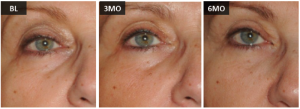 prp-beforeafter-eyes